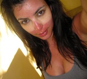 Kim K sunburn